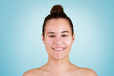 Active Acne and Acne Scarring